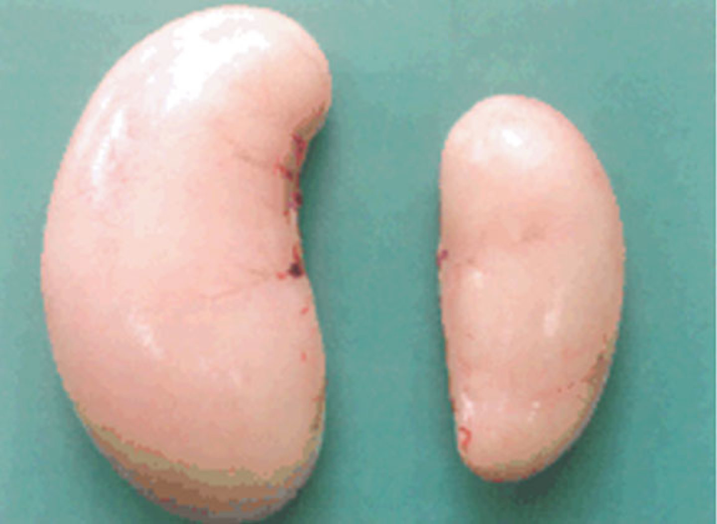 ZEN results in the reduction of testes size in cocks. Left – normal testis; right - atrophied testis in a cock that received a diet contaminated with a high ZEN concentration.